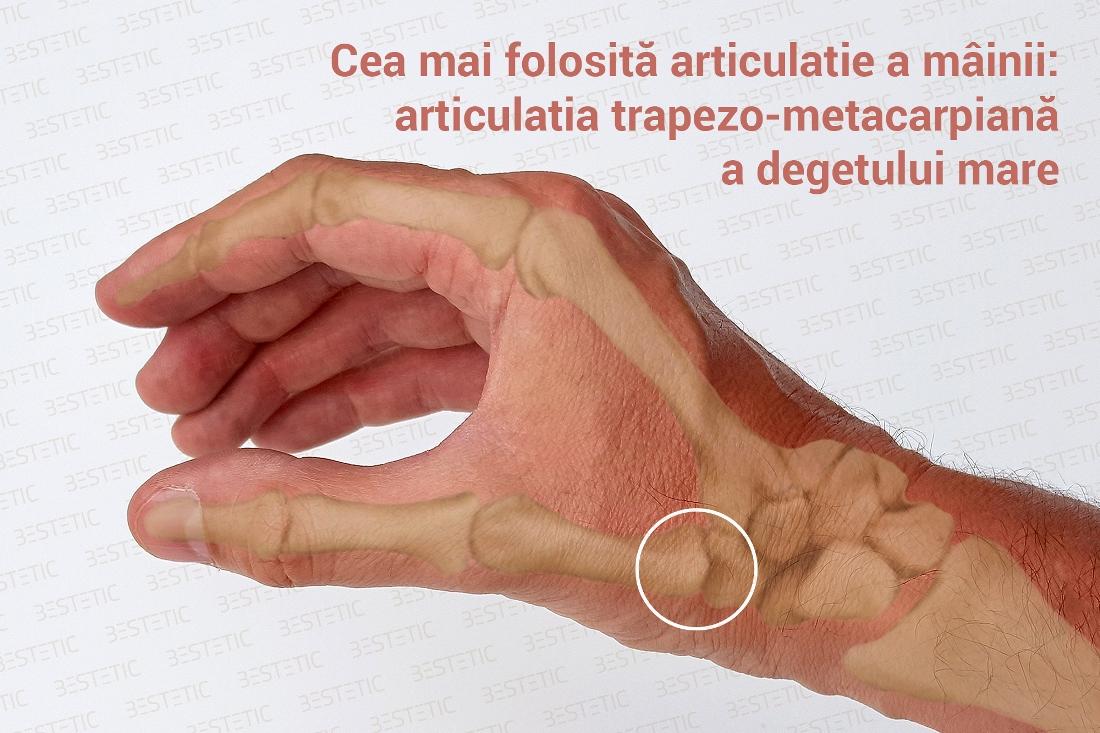 articulațiile degetului mare al mâinii drepte osteochondroza cu unguent gel