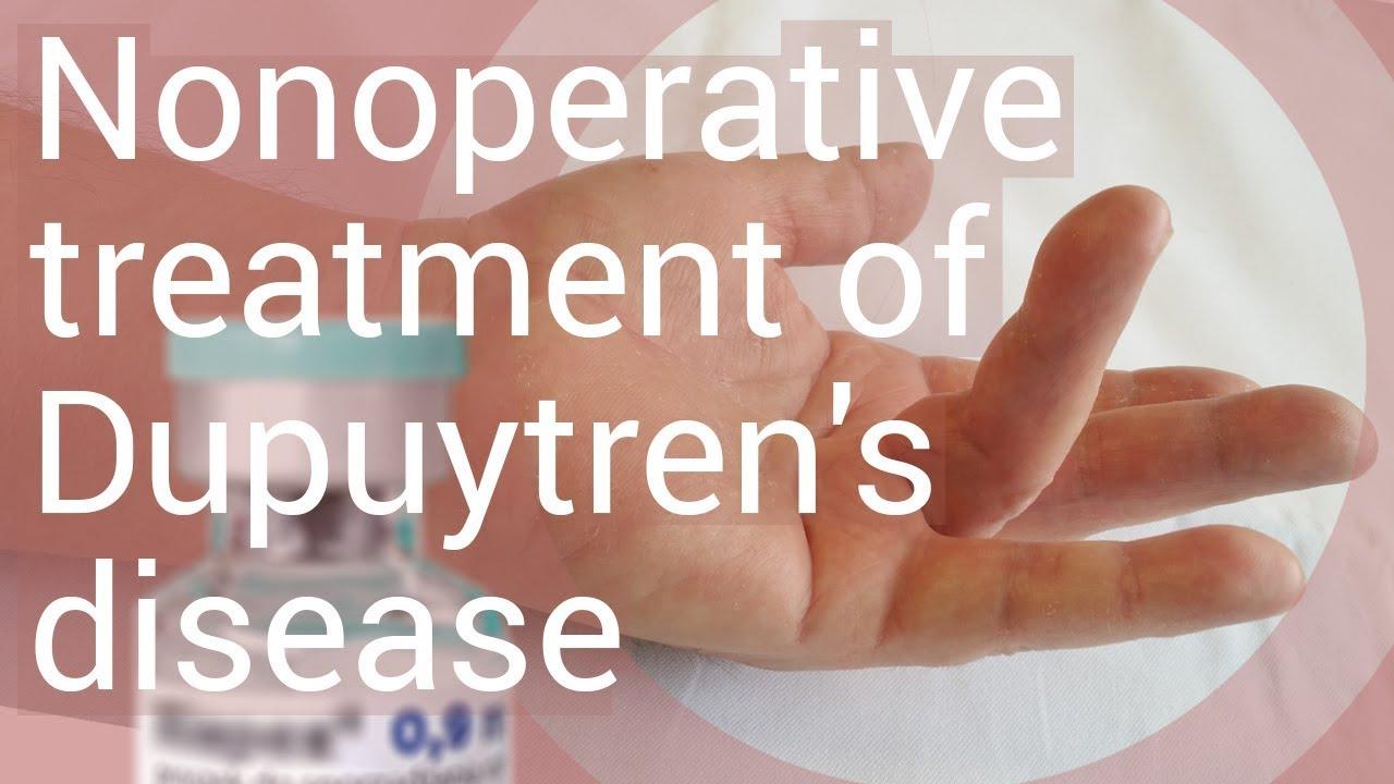 artroza articulației gleznei provoacă tratament la artroza articulației șoldului