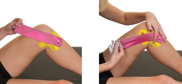 tratament pentru ruperea ligamentelor gleznei