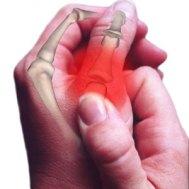 boala articulară semnează un tratament istoric medical de artroză a articulației umărului