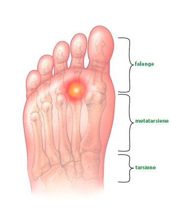Metatarsalgia (inclusiv sindromul Morton)