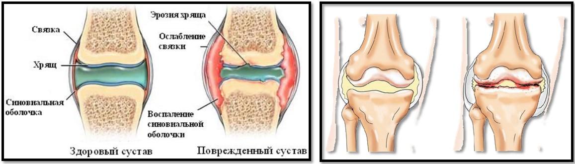 care tratează artroza și osteochondroza umflarea articulației genunchiului cum să tratezi