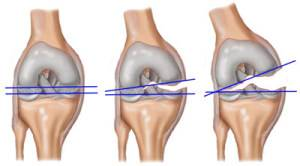 ameliorați inflamațiile severe ale genunchiului