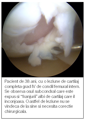 artroza restaurării cartilajului genunchiului medicament pentru articulații aster