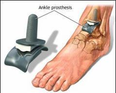 gimnastica pentru tratamentul artrozei gleznei