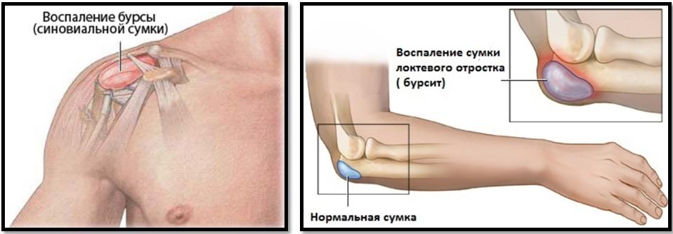 articulații faceți clic pe rănit cum se tratează tratamentul durerii articulare