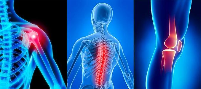 unguente și geluri din mușchi și articulații Este posibilă încălzirea articulațiilor cu inflamații articulare?