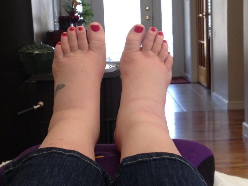 pastile pentru picioare umflate leziune articulară femurală