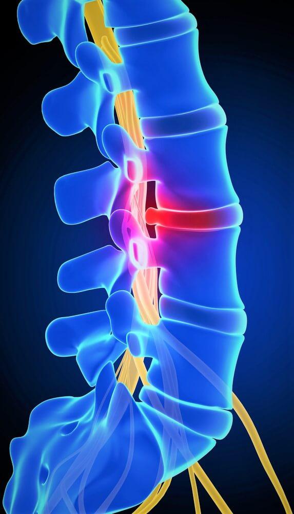 dureri articulare în tratamentul pelvisului