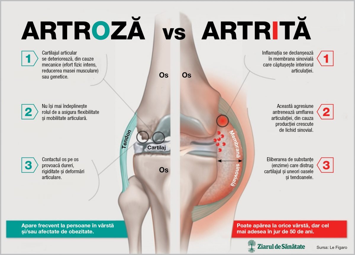 istoric medical osteocondroza genunchiului