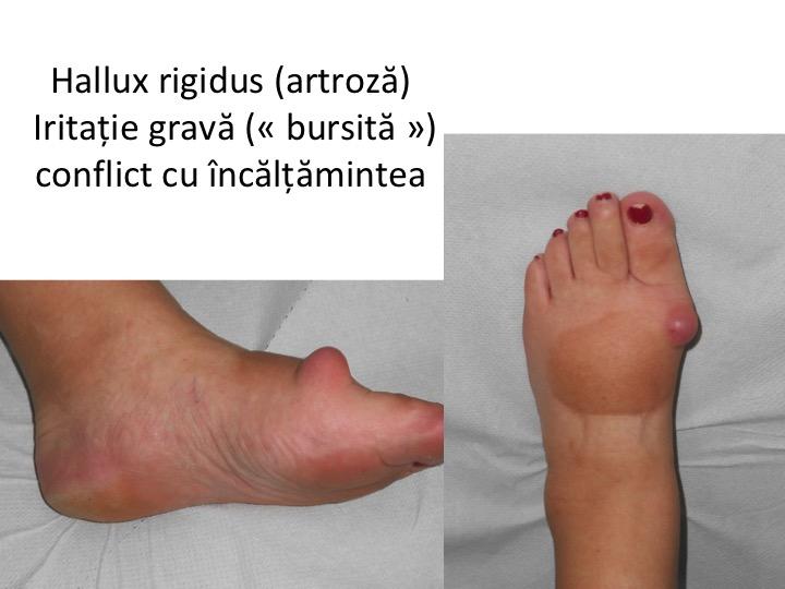 articulația în picior doare