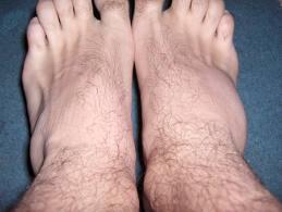 cumpărați argilă pentru tratamentul artrozei calmante pentru boala articulară