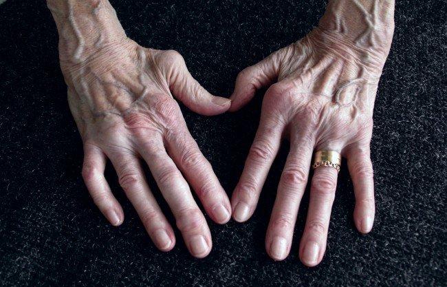 cum să amelioreze inflamația articulară în artrita reumatoidă articulația doare mâna