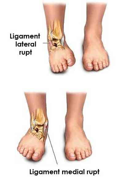 deteriorarea parțială a ligamentului gleznei artroza articulației gleznei drepte 2 grade