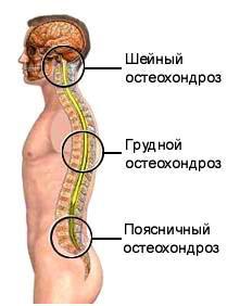 tratament cu osteochondroza cervicală