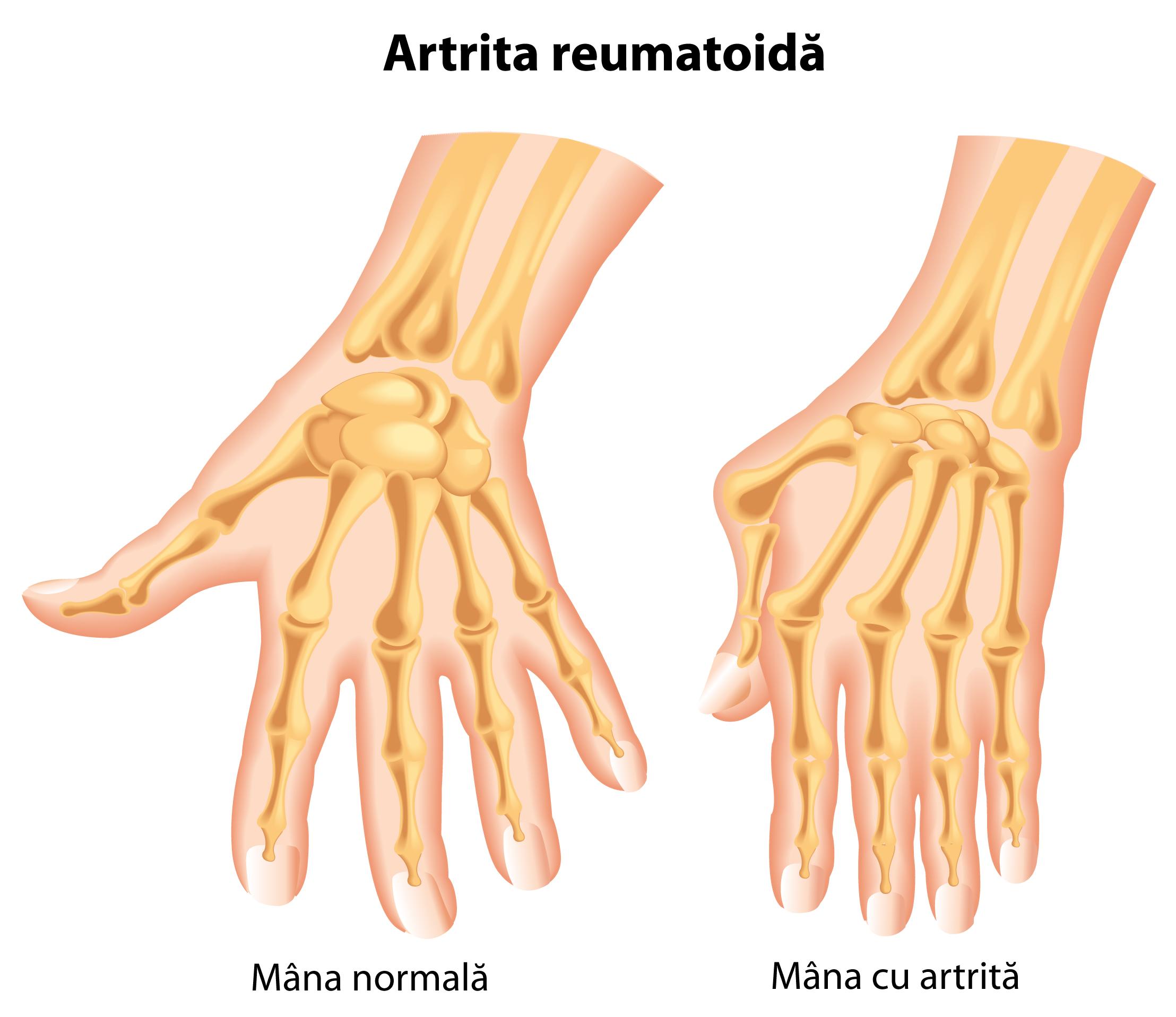cum se poate vindeca artrita degetelor Tehnologie medicală Durere articulară