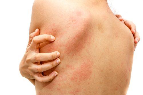 tratamentul bancar al artrozei genunchiului artrita încheieturilor și degetelor
