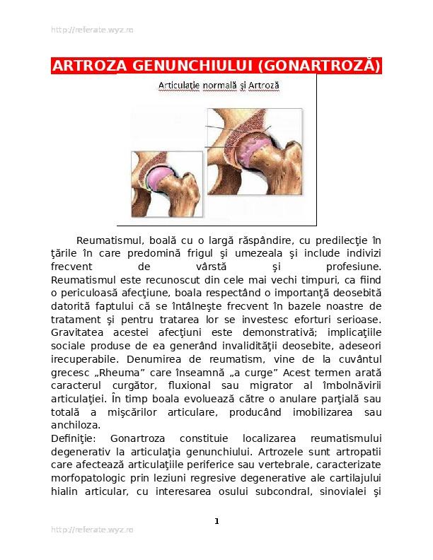 leziuni articulare cu entorse și tendoane dureri articulare în vârful picioarelor