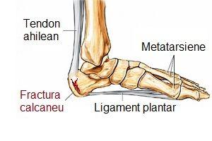 afectarea nervilor în articulația gleznei preparat de unguent pentru osteochondroză cervicală