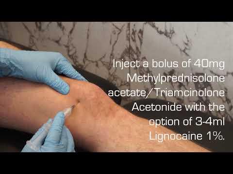 antiinflamatoare steroid articular