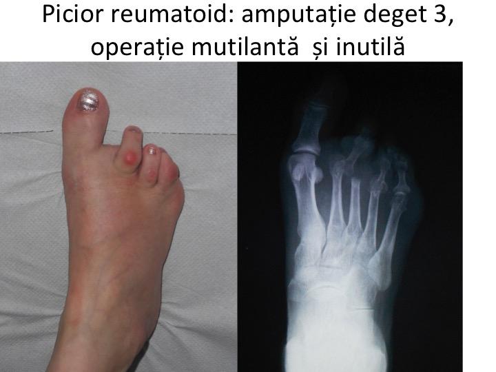 articulația artritei pe bontul piciorului ce pastile ajuta la durerile articulare