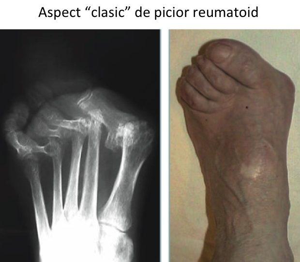 articulația artritei pe bontul piciorului dureri de genunchi și alergare