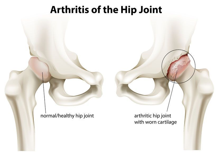 articulația șoldului și bolile sale artroza durerii constante a genunchiului