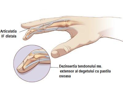 articulația pe mână pe deget doare