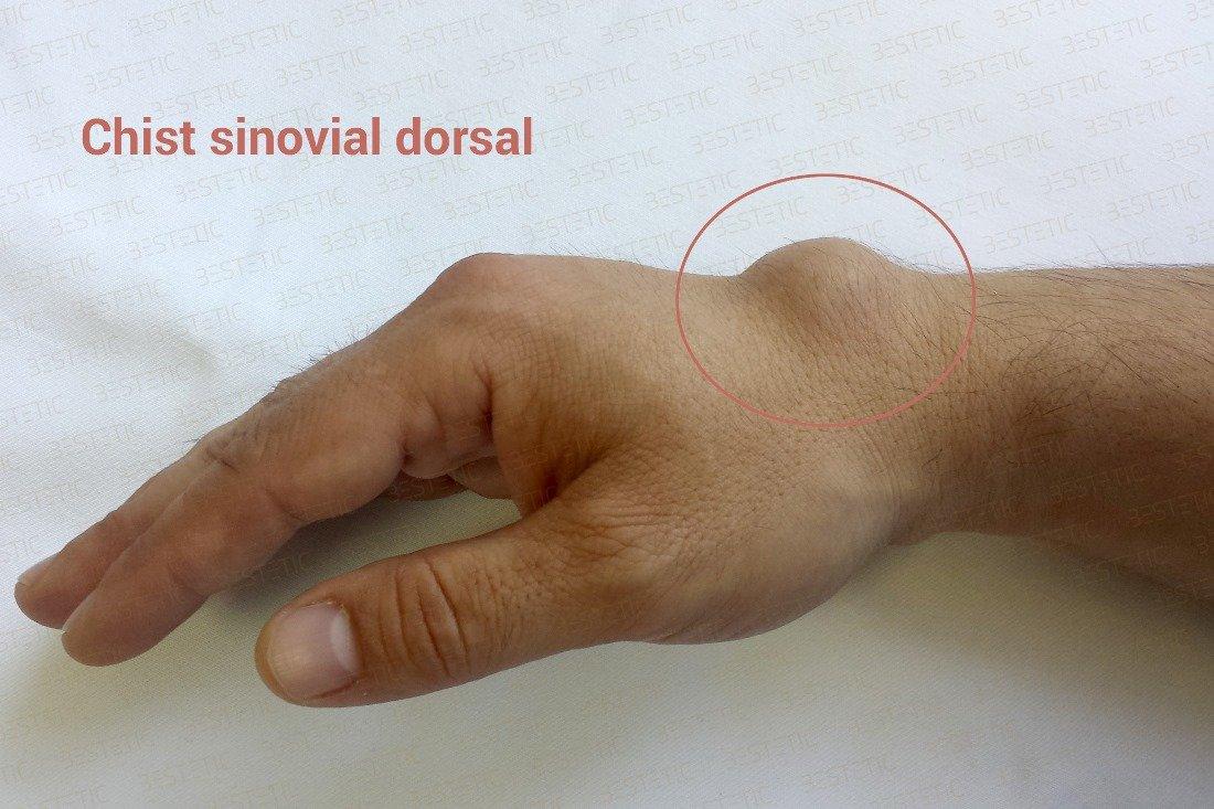 articulația umflată pe mână și doare