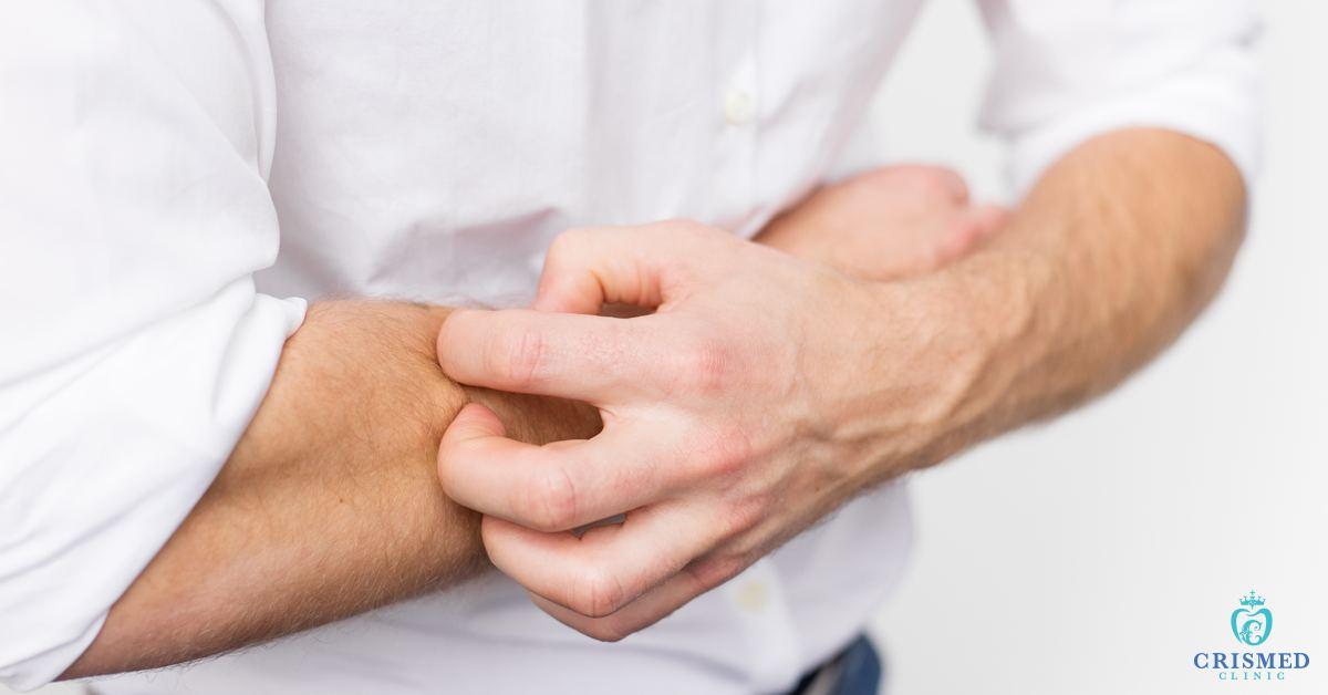 Artrita reumatoida - Cum să tratezi durerea în articulațiile degetelor