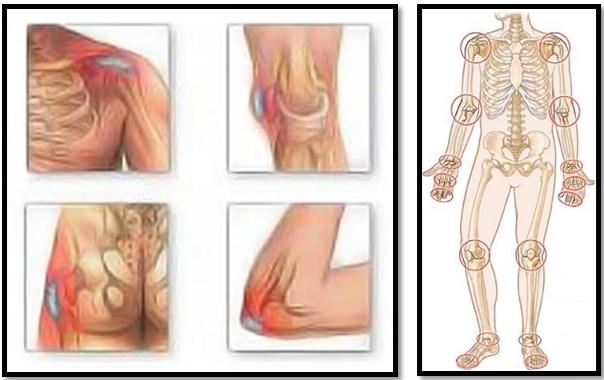 articulații faceți clic pe rănit retete pentru tratamentul artrozei genunchiului