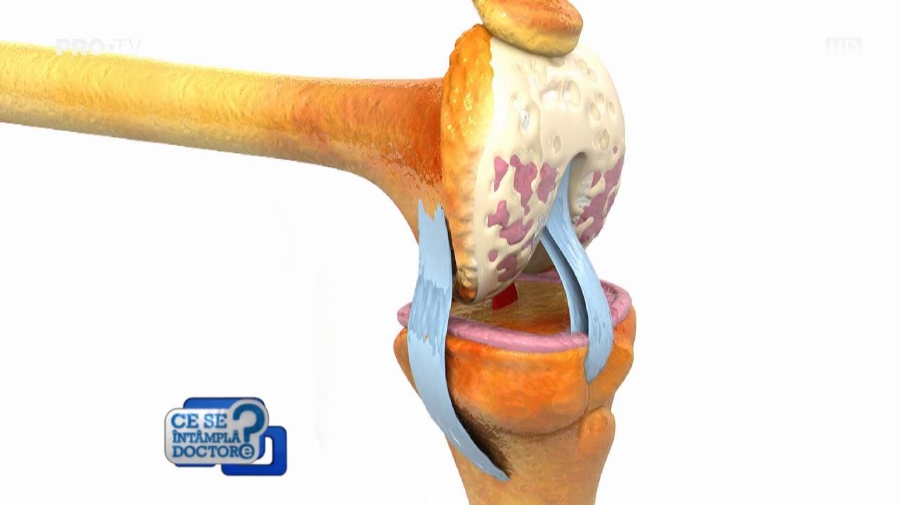 articulații și ligamente restaurative articulațiile rigide dimineața decât pentru a trata