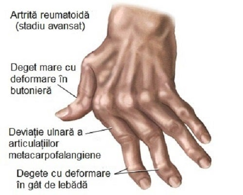 articulațiile din mâinile degetelor doare