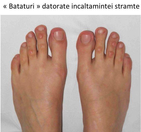 artrita falangelor degetelor de la picioare clasificarea artrozei gleznei