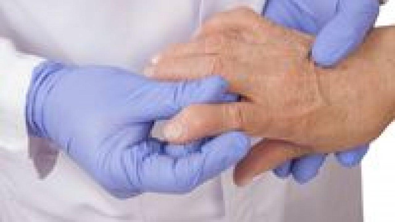 protocol de tratament pentru deformarea artrozei umflarea durerii gleznelor la mers