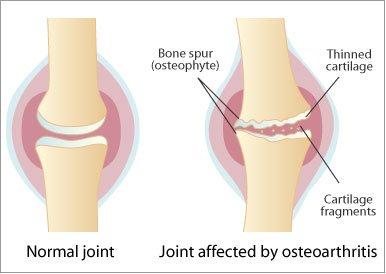 artroza articulațiilor arcuite ale coloanei vertebrale