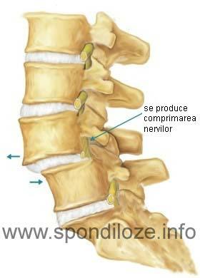 articulația gleznei doare după alergare artroza articulației șoldului cum se anesteziază