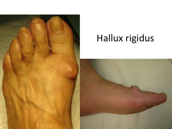 artroza degetelor de la picioare decât a trata