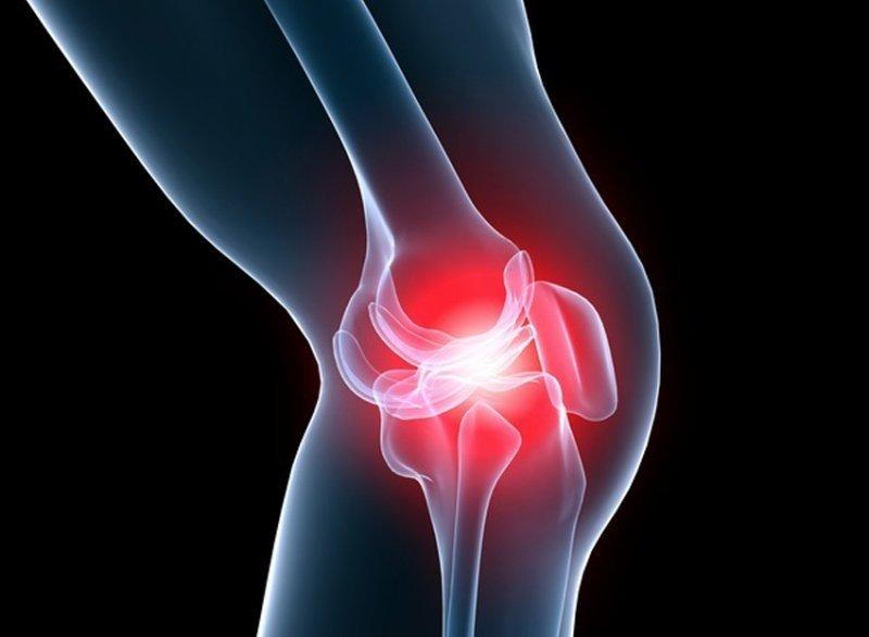 compoziția compresei pentru durere în articulația genunchiului
