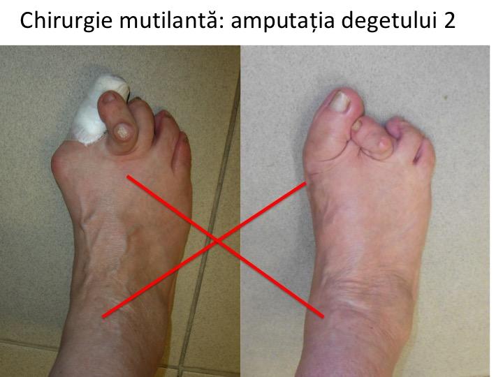 artroza articulațiilor piciorului cum se tratează durere articulară pelvină