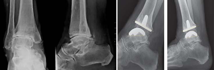 artroza gleznei tratament naturist refacerea mobilității în articulația șoldului