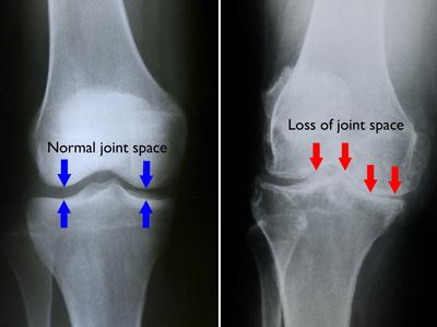 Artroza gradului 1 al articulației genunchiului,