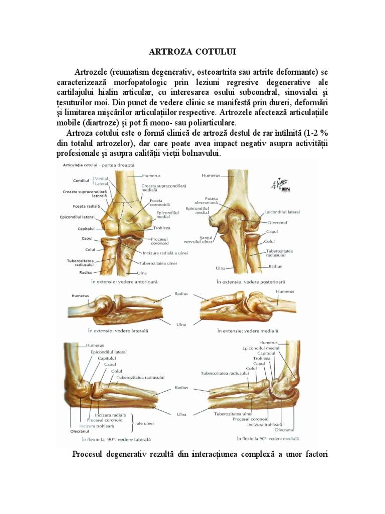 ozokerită în tratamentul articulațiilor Ketoprofen pentru artroza genunchiului