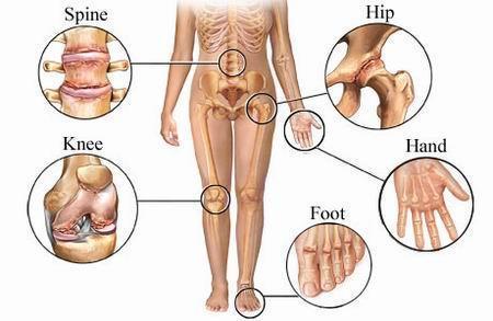 Artroza stadiul decât tratarea - Consultatie Dr. Jawad
