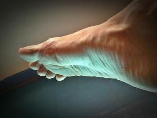 genunchiul purtat decât pentru a trata lupta împotriva durerii în articulația șoldului