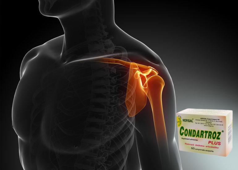 medicament eficient pentru artroza umărului