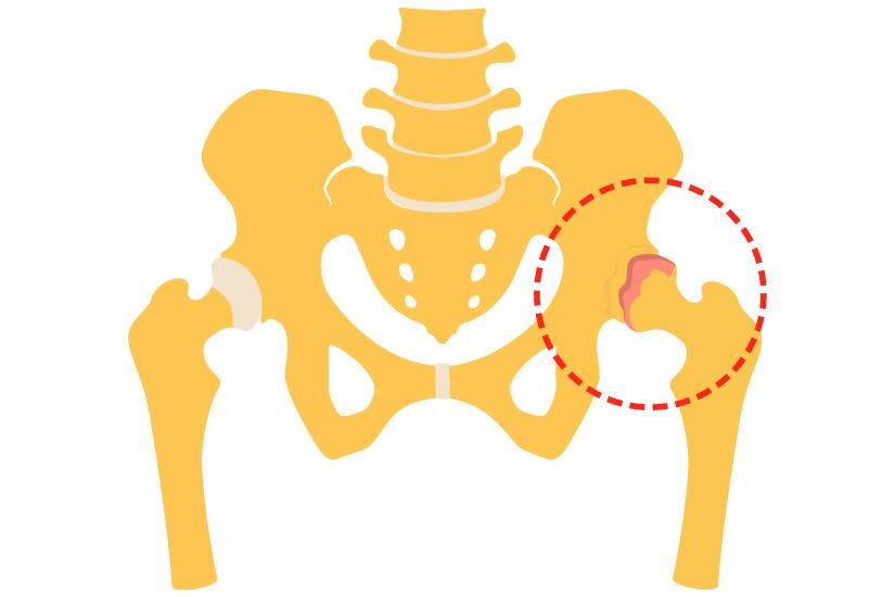 tratamentul în pacienți al artrozei șoldului ce durere cu artrita genunchiului