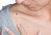 articulații mâncărime și umflături tratamentul cu artroză a injecțiilor cu acid hialuronic