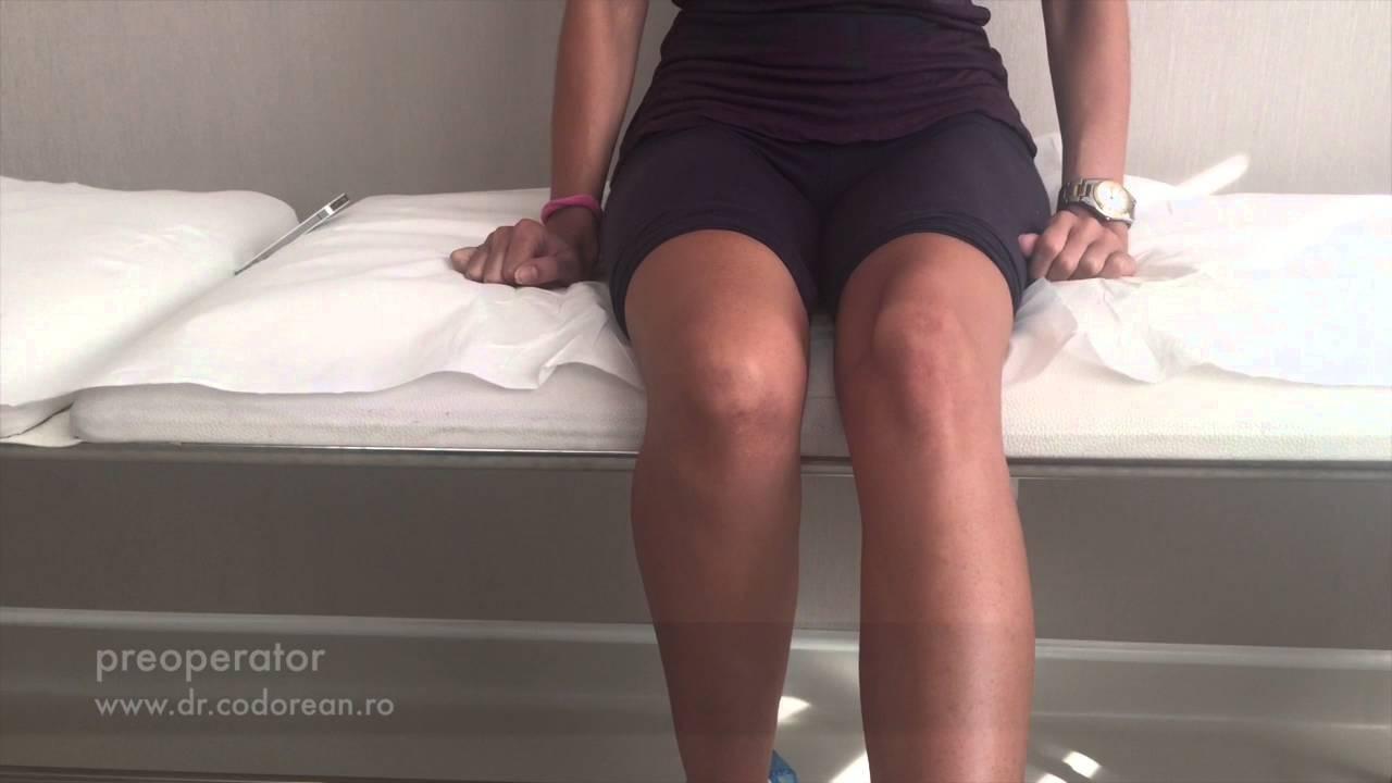 Anghinare din Ierusalim pentru dureri articulare forum de tratare a artrozei articulațiilor umărului