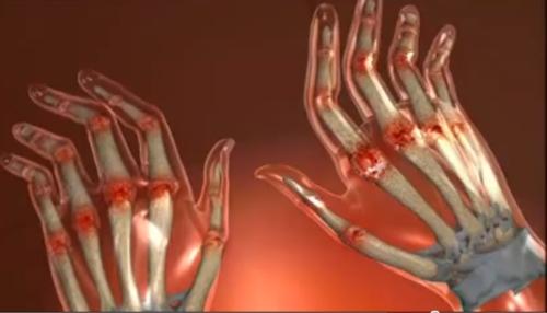 Vindeca degetele artritei, scleroderma...
